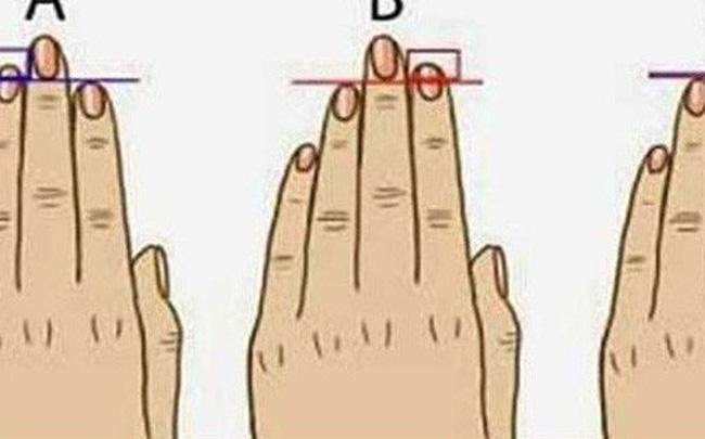 Nam giới yếu sinh lý thường có ngón trỏ cao hơn ngón áp út
