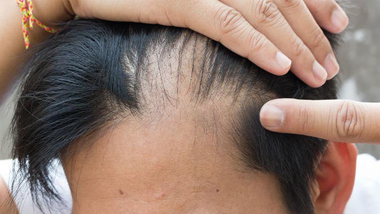 Thường xuyên rụng tóc cho thấy sức khoẻ sinh lý của nam giới ngày càng suy giảm